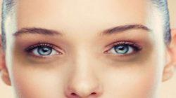 De ce apar pungile de sub ochi si ce simptome prezinta?