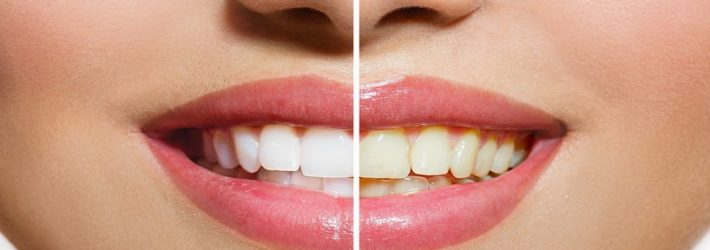 Unde este mai rentabil sa iti albesti dintii?
