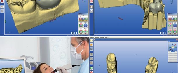 What is CAD/ CAM Dentistry?